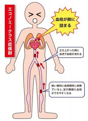 エコノミー症候群の原因を示す図の画像